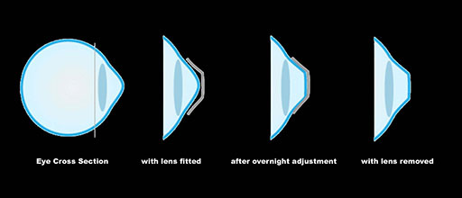 Stages of Non-Lasik Corneal Refractive Therapy Vision Correction